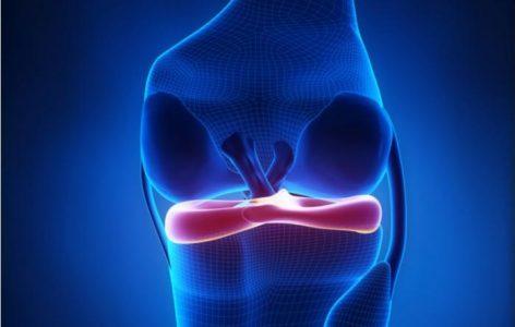 knee ligament meniscus injury